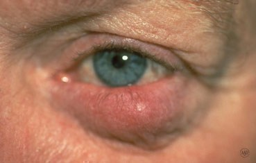 rosacea_symptoms-ocular.jpg