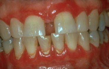 lichen-planus-symptoms_gums.jpg