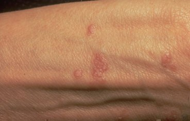 lichen-planus-symptoms_types_bumps.jpg